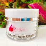 ครีมลดรอยสิว Princess Acne Cream